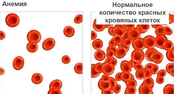 Как вылечить анемию в домашних условиях народными средствами?
