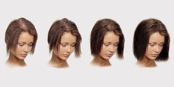 Выпадение волос у женщин – причины и способы лечения
