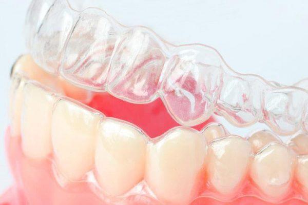 Как происходит выравнивание зубов