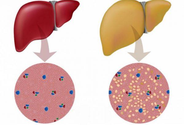 Место Десферала в комплексной терапии наследственного гемохроматоза у детей