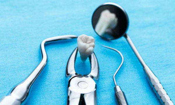 Хирургическое и нехирургическое удаление зубов: как проводятся операции