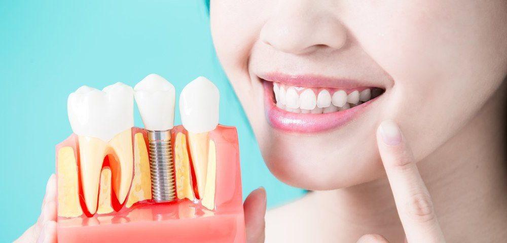 Виды имплантов зубов