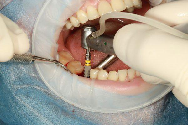 Имплантация зубов в Москве по современным технологиям